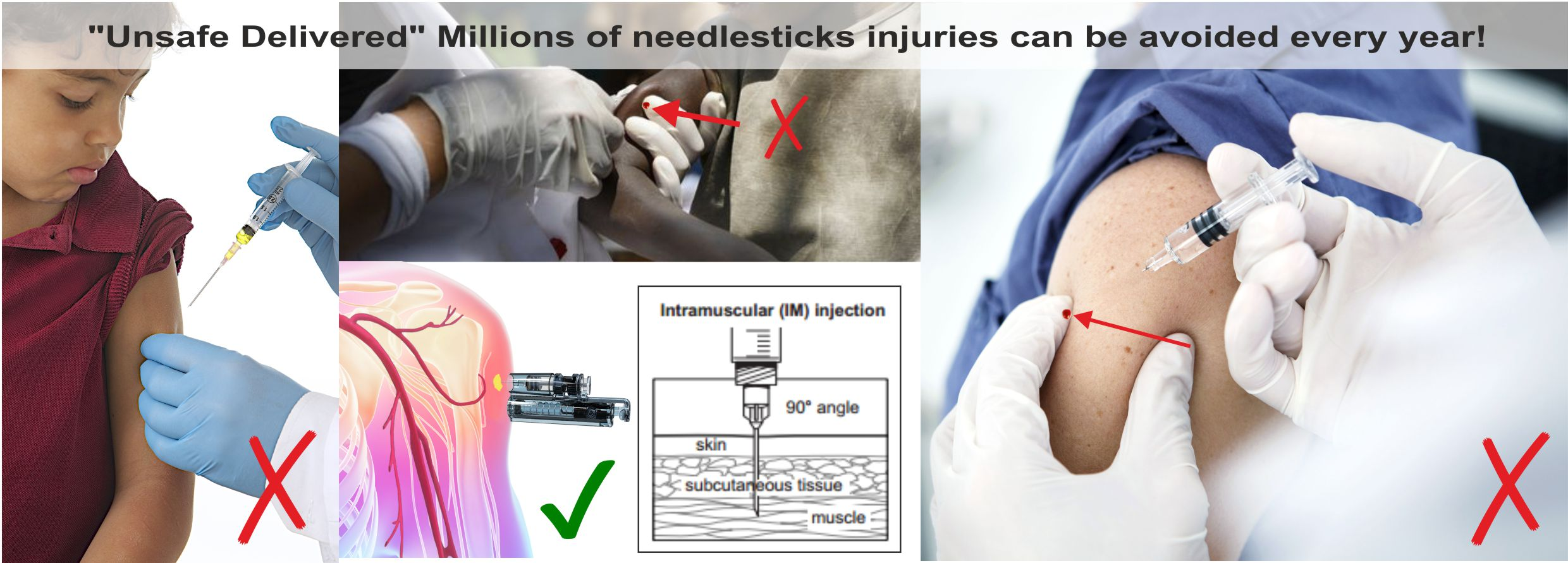 intramusuclar-injection